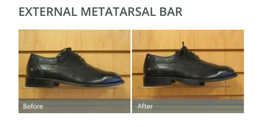 external shoe modification metatarsal bar